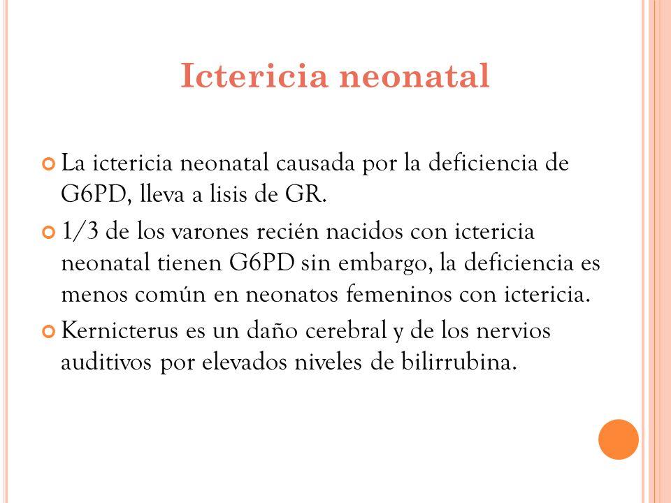 Ictericia neonatal La ictericia neonatal causada por la deficiencia de G6PD, lleva a lisis de GR. 1/3 de los varones recién nacidos con ictericia neon