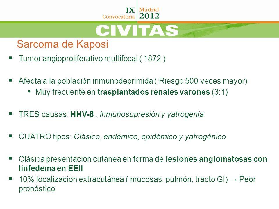 Sarcoma de Kaposi Tumor angioproliferativo multifocal ( 1872 ) Afecta a la población inmunodeprimida ( Riesgo 500 veces mayor) Muy frecuente en traspl