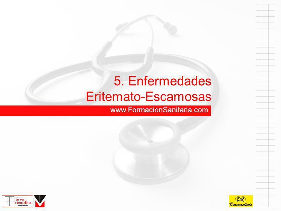 5.2 Pitiriasis Rosada de Gibert Lesión elemental:Placas y máculas eritemato-edematosas, collarete periférico descamativo con remisión central.