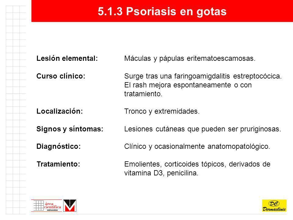 5.1.3 Psoriasis en gotas Lesión elemental:Máculas y pápulas eritematoescamosas. Curso clínico:Surge tras una faringoamigdalitis estreptocócica. El ras