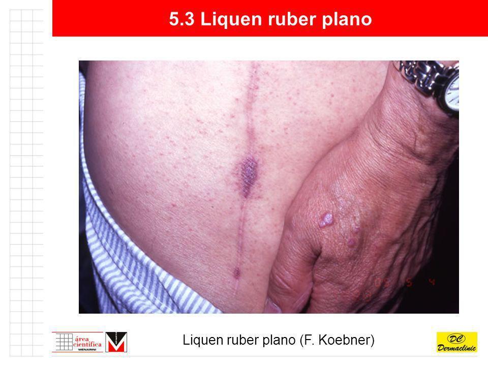 5.3 Liquen ruber plano Liquen ruber plano (F. Koebner)