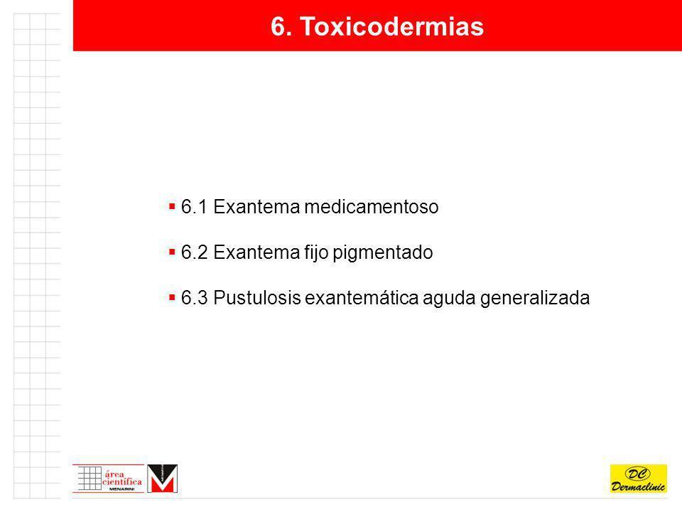 6. Toxicodermias 6.1 Exantema medicamentoso 6.2 Exantema fijo pigmentado 6.3 Pustulosis exantemática aguda generalizada