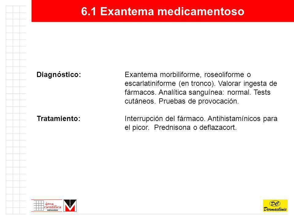 6.1 Exantema medicamentoso Diagnóstico: Exantema morbiliforme, roseoliforme o escarlatiniforme (en tronco). Valorar ingesta de fármacos. Analítica san