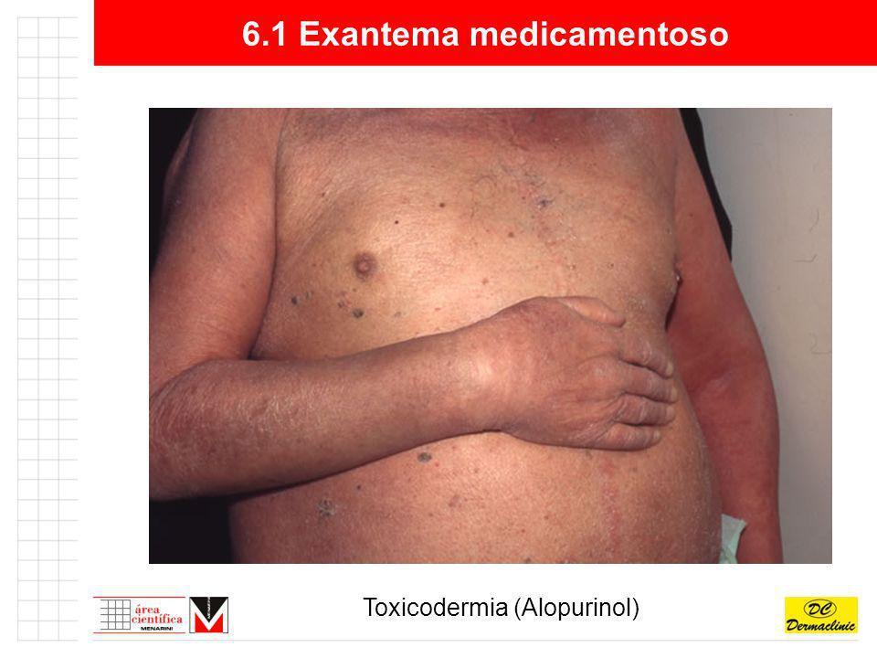 6.1 Exantema medicamentoso Toxicodermia (Alopurinol)