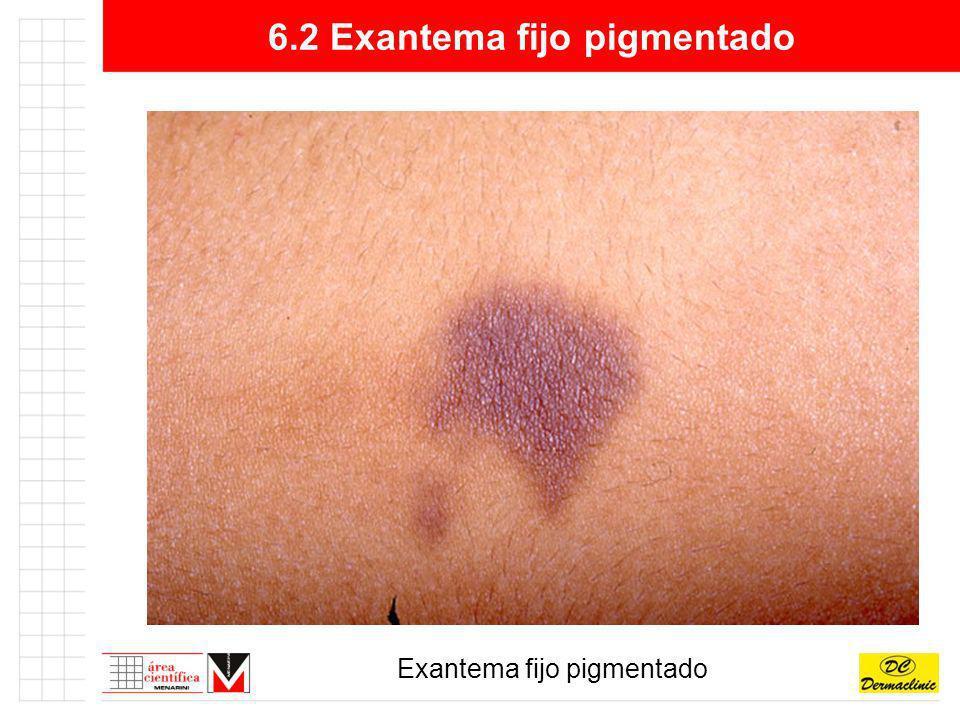 6.2 Exantema fijo pigmentado Exantema fijo pigmentado
