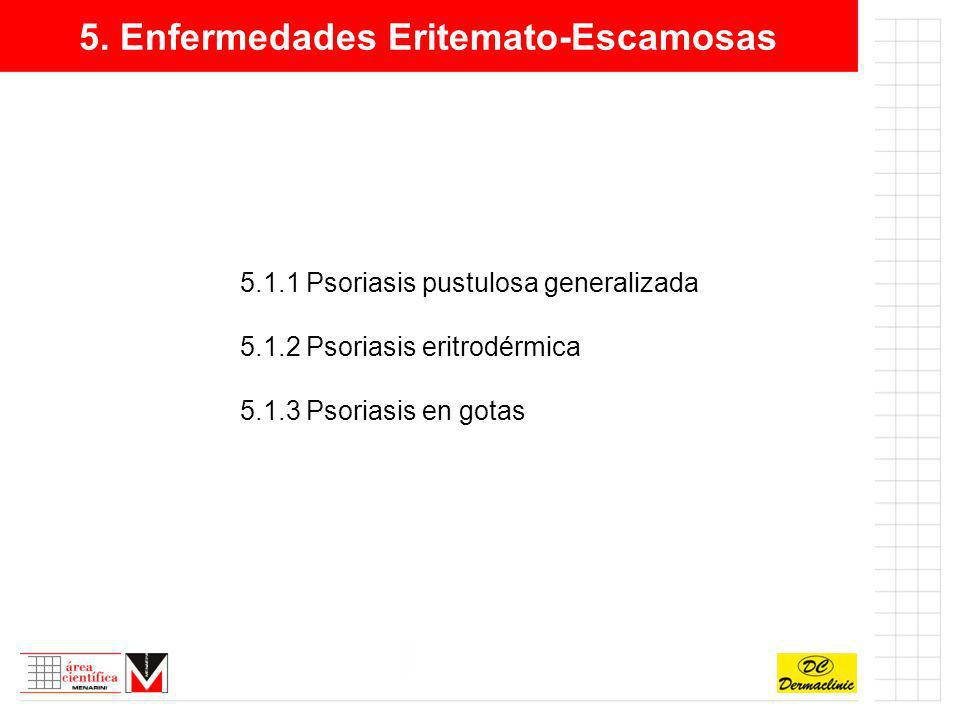 5. Enfermedades Eritemato-Escamosas 5.1.1 Psoriasis pustulosa generalizada 5.1.2 Psoriasis eritrodérmica 5.1.3 Psoriasis en gotas
