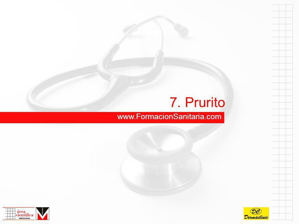 7. Prurito www.FormacionSanitaria.com