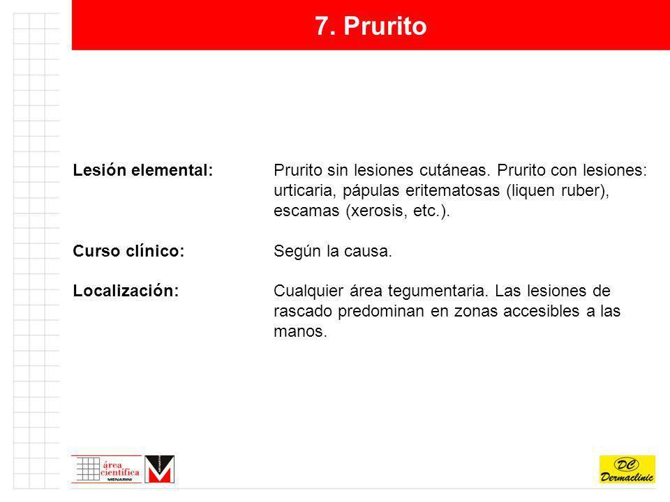 7. Prurito Lesión elemental:Prurito sin lesiones cutáneas. Prurito con lesiones: urticaria, pápulas eritematosas (liquen ruber), escamas (xerosis, etc