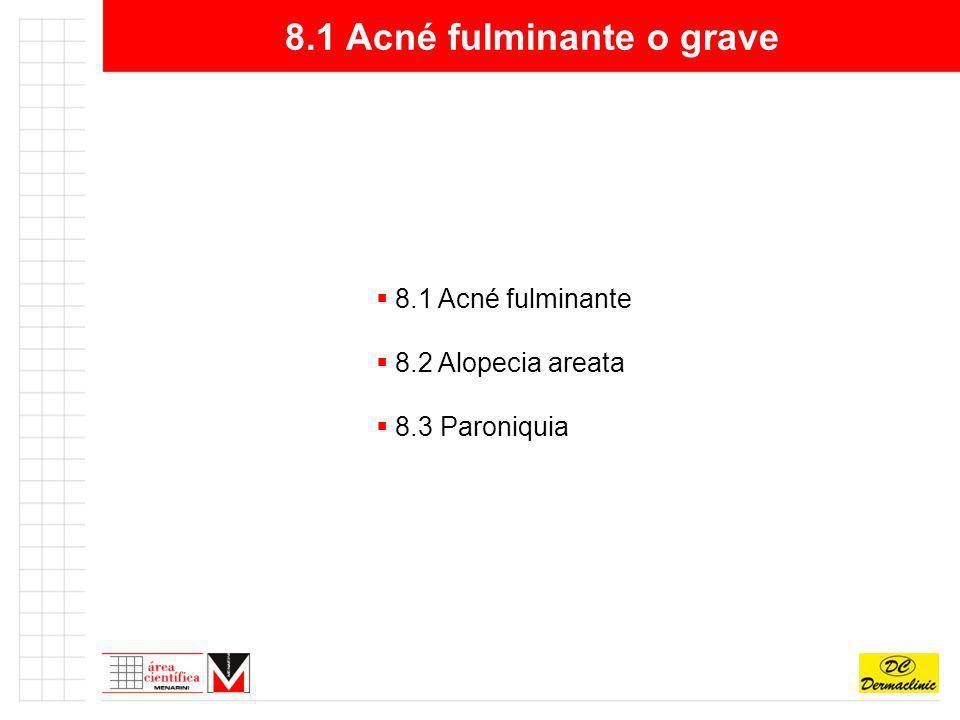 8.1 Acné fulminante o grave 8.1 Acné fulminante 8.2 Alopecia areata 8.3 Paroniquia