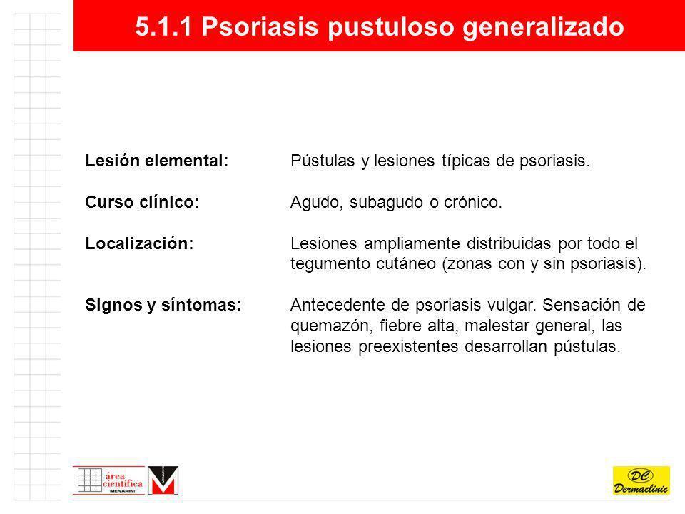 5.1.1 Psoriasis pustuloso generalizado Lesión elemental:Pústulas y lesiones típicas de psoriasis. Curso clínico:Agudo, subagudo o crónico. Localizació