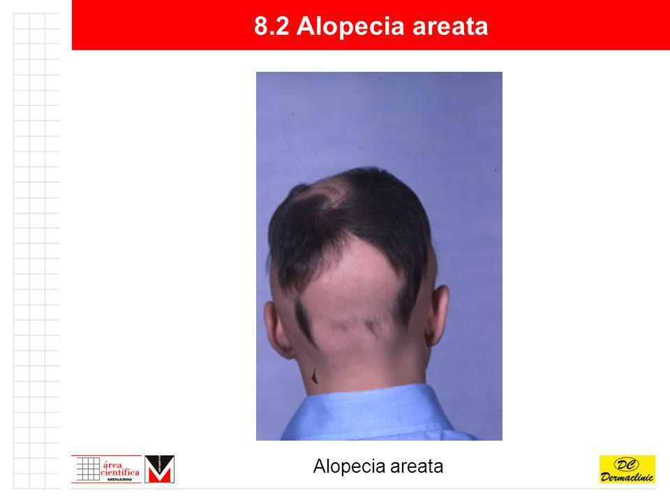 8.2 Alopecia areata Alopecia areata