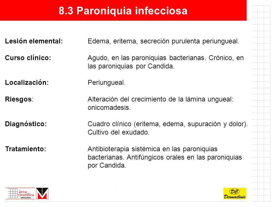 8.3 Paroniquia infecciosa Lesión elemental:Edema, eritema, secreción purulenta periungueal. Curso clínico:Agudo, en las paroniquias bacterianas. Cróni