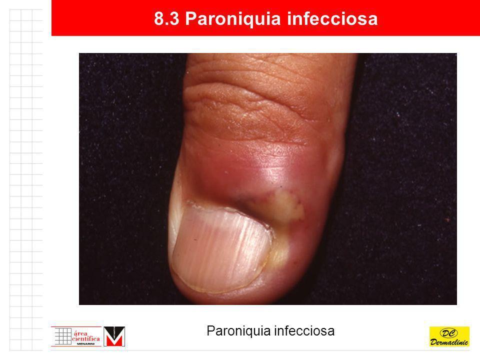 8.3 Paroniquia infecciosa Paroniquia infecciosa