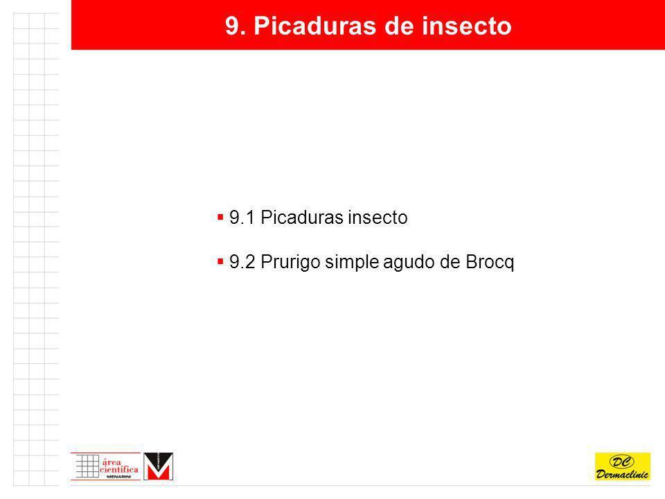 9. Picaduras de insecto 9.1 Picaduras insecto 9.2 Prurigo simple agudo de Brocq