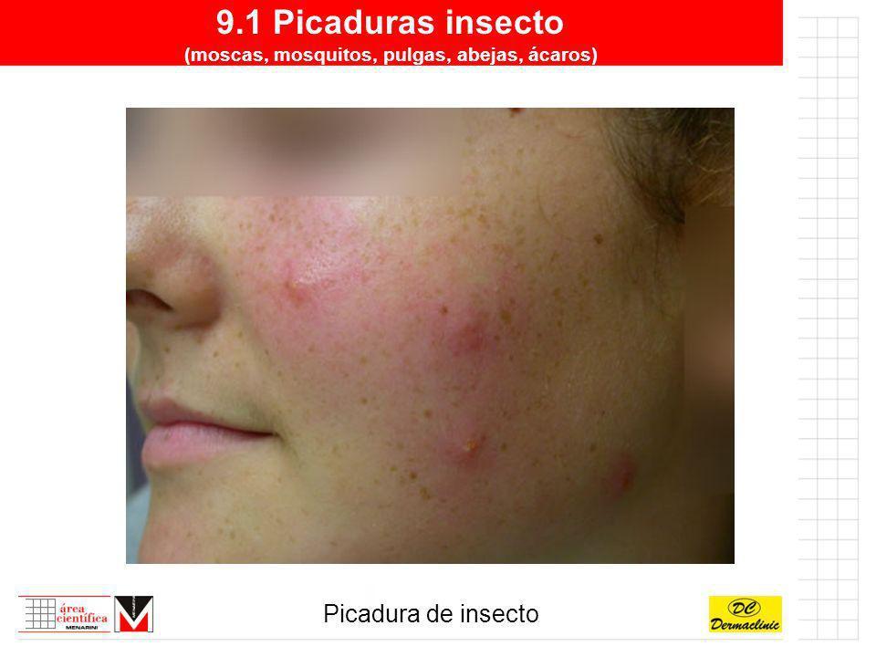 9.1 Picaduras insecto (moscas, mosquitos, pulgas, abejas, ácaros) Picadura de insecto