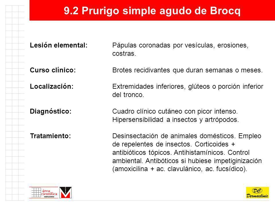 9.2 Prurigo simple agudo de Brocq Lesión elemental:Pápulas coronadas por vesículas, erosiones, costras. Curso clínico:Brotes recidivantes que duran se