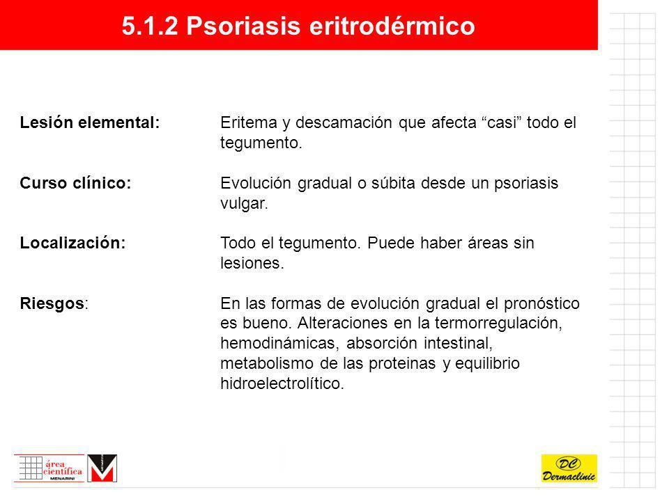 5.1.2 Psoriasis eritrodérmico Lesión elemental:Eritema y descamación que afecta casi todo el tegumento. Curso clínico:Evolución gradual o súbita desde