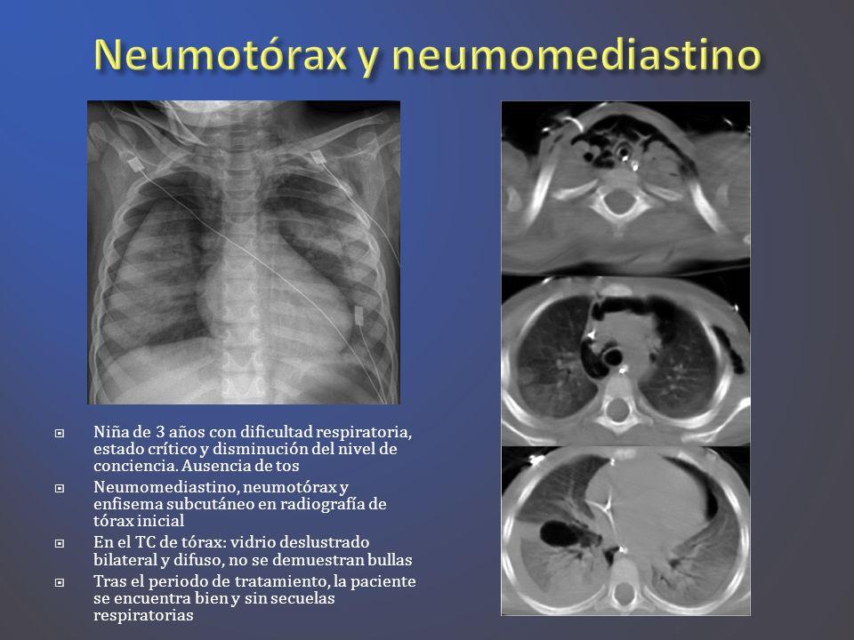 Niña de 3 años con dificultad respiratoria, estado crítico y disminución del nivel de conciencia. Ausencia de tos Neumomediastino, neumotórax y enfise
