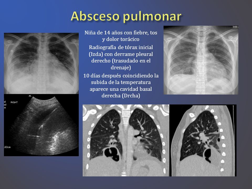 Niña de 14 años con fiebre, tos y dolor torácico Radiografía de tórax inicial (Izda) con derrame pleural derecho (trasudado en el drenaje) 10 días des