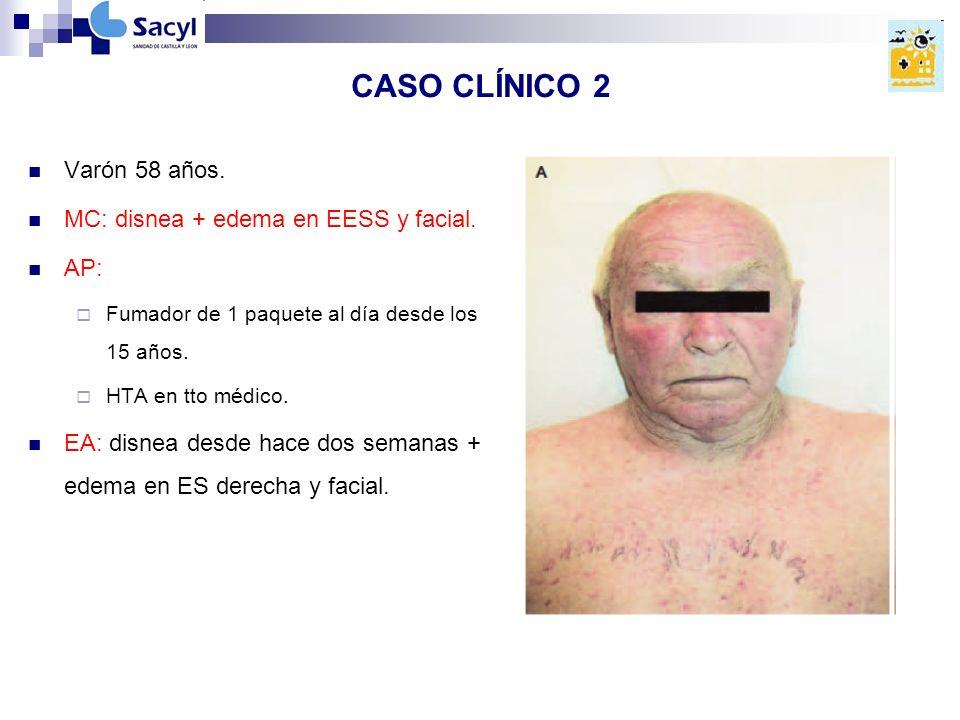 CASO CLÍNICO 2 Varón 58 años.MC: disnea + edema en EESS y facial.