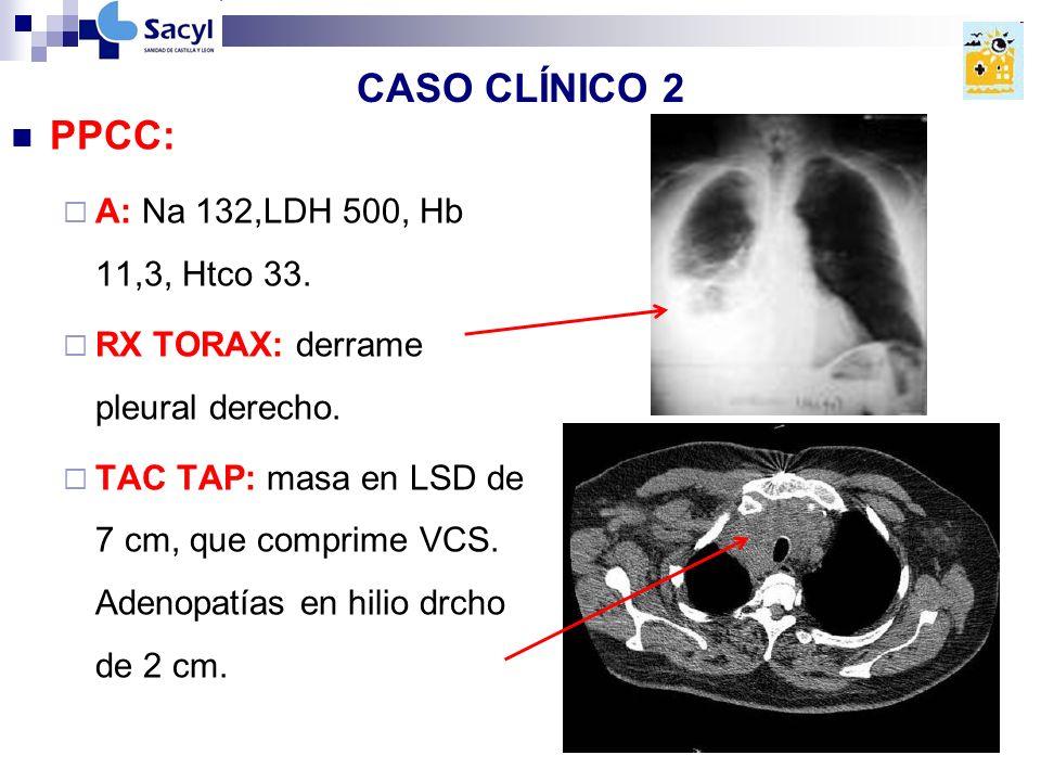 CASO CLÍNICO 2 PPCC: A: Na 132,LDH 500, Hb 11,3, Htco 33.