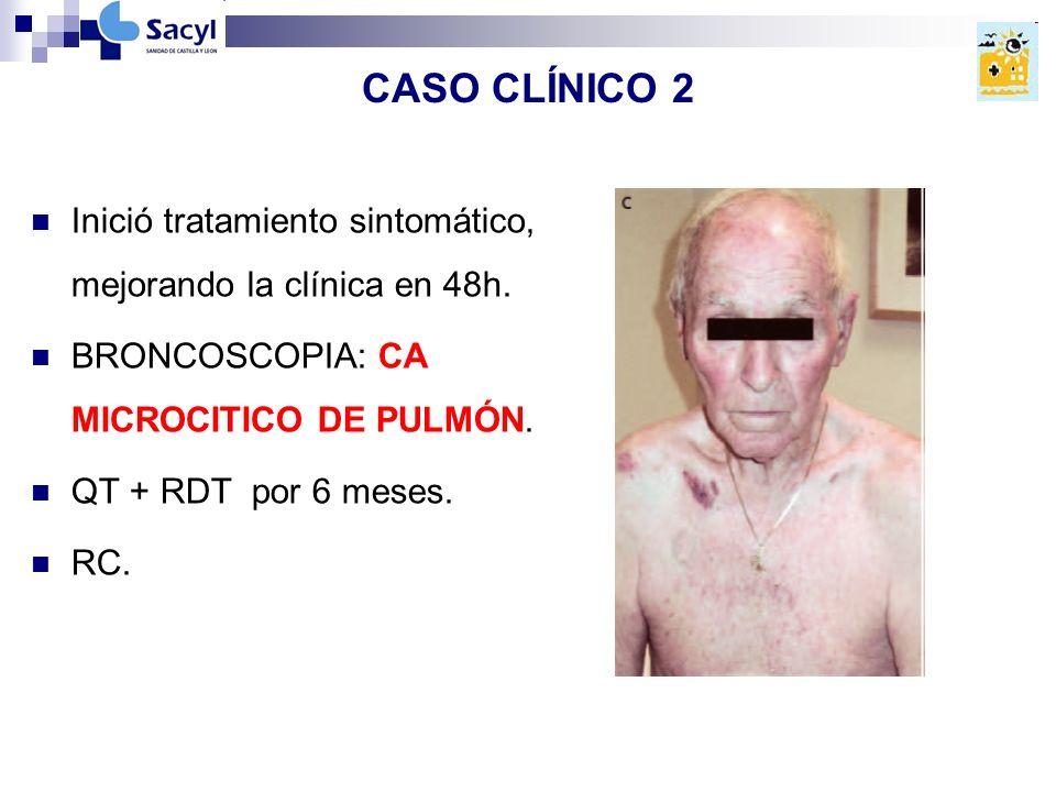 CASO CLÍNICO 2 Inició tratamiento sintomático, mejorando la clínica en 48h.