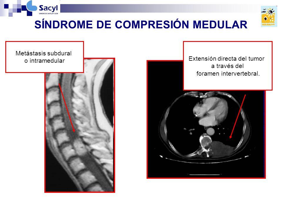 SÍNDROME DE COMPRESIÓN MEDULAR Extensión directa del tumor a través del foramen intervertebral.