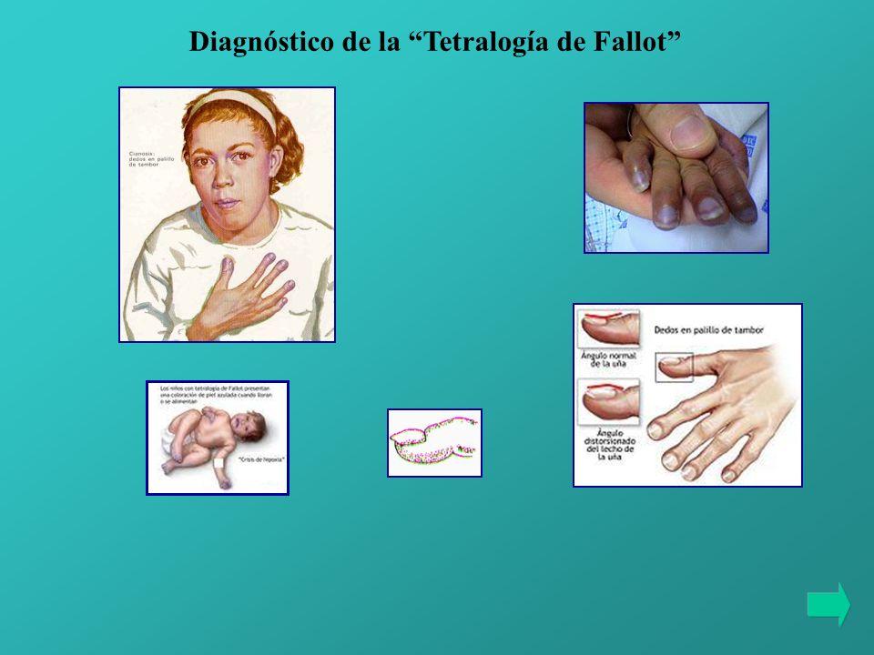 Diagnóstico de la Tetralogía de Fallot