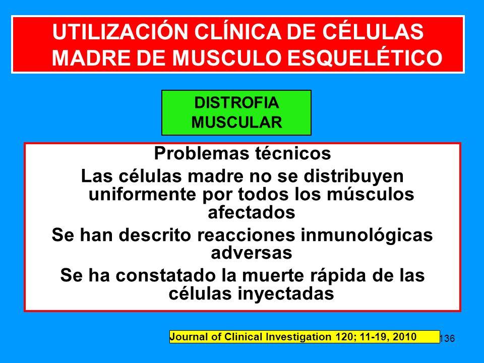 136 UTILIZACIÓN CLÍNICA DE CÉLULAS MADRE DE MUSCULO ESQUELÉTICO DISTROFIA MUSCULAR Problemas técnicos Las células madre no se distribuyen uniformente por todos los músculos afectados Se han descrito reacciones inmunológicas adversas Se ha constatado la muerte rápida de las células inyectadas Journal of Clinical Investigation 120; 11-19, 2010