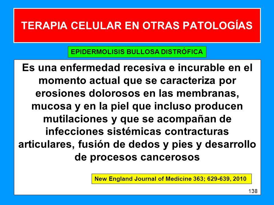 TERAPIA CELULAR EN OTRAS PATOLOGÍAS Es una enfermedad recesiva e incurable en el momento actual que se caracteriza por erosiones dolorosos en las membranas, mucosa y en la piel que incluso producen mutilaciones y que se acompañan de infecciones sistémicas contracturas articulares, fusión de dedos y pies y desarrollo de procesos cancerosos 138 EPIDERMOLISIS BULLOSA DISTRÓFICA New England Journal of Medicine 363; 629-639, 2010