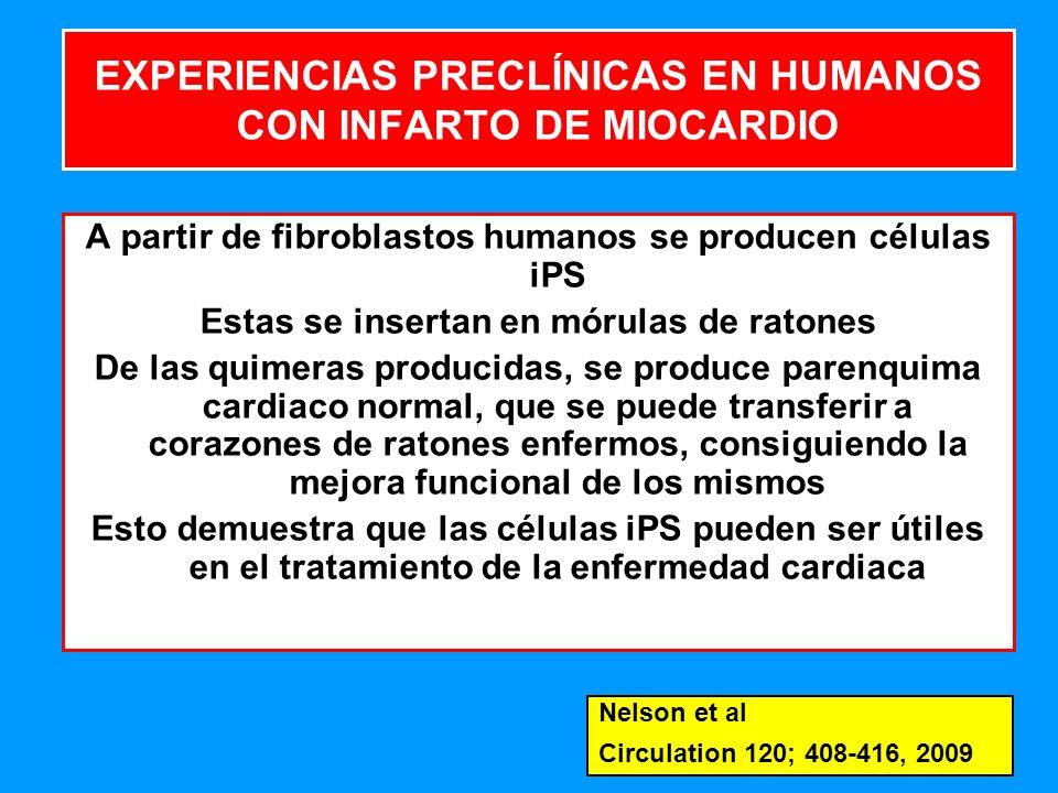 217 A partir de fibroblastos humanos se producen células iPS Estas se insertan en mórulas de ratones De las quimeras producidas, se produce parenquima cardiaco normal, que se puede transferir a corazones de ratones enfermos, consiguiendo la mejora funcional de los mismos Esto demuestra que las células iPS pueden ser útiles en el tratamiento de la enfermedad cardiaca EXPERIENCIAS PRECLÍNICAS EN HUMANOS CON INFARTO DE MIOCARDIO Nelson et al Circulation 120; 408-416, 2009