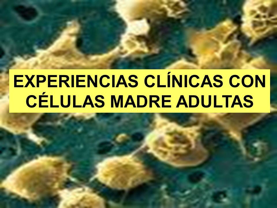 82 EXPERIENCIAS CLÍNICAS CON CÉLULAS MADRE ADULTAS