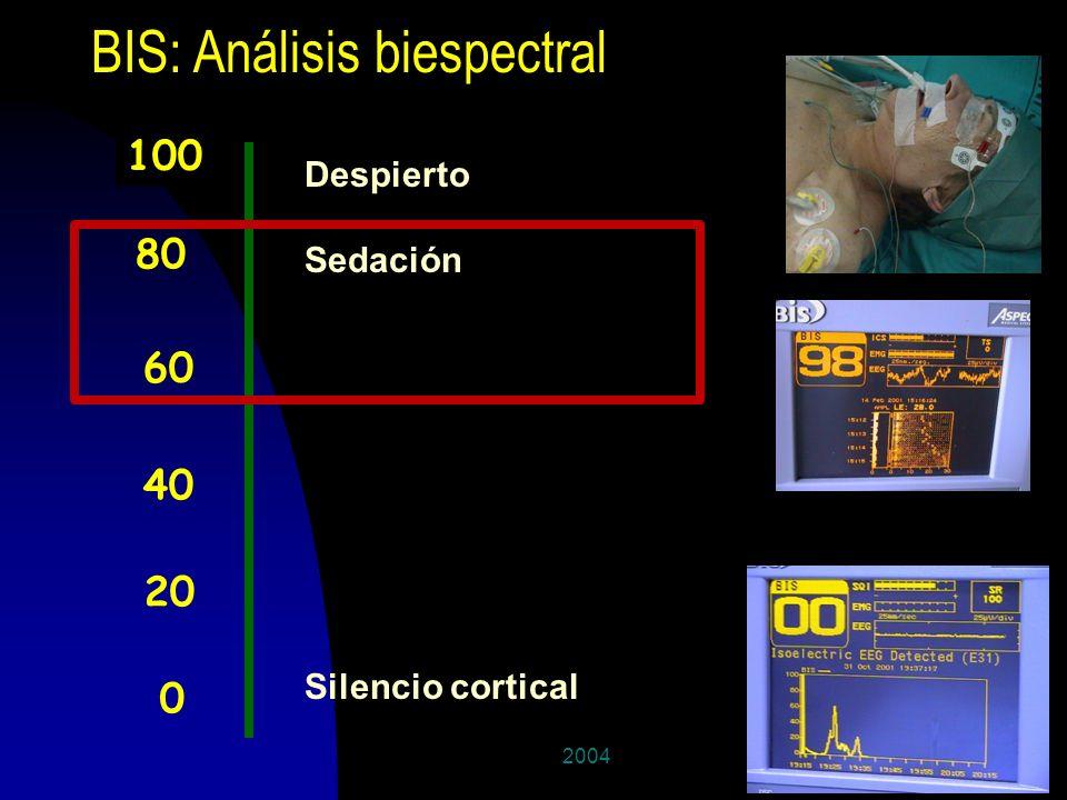 200445 BIS: Análisis biespectral 100 0 40 80 60 20 Despierto Sedación Silencio cortical