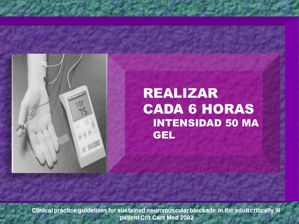 H+H+ H+H+ REALIZAR CADA 6 HORAS INTENSIDAD 50 MA GEL Clinical practice guidelines for sustained neuromuscular blockade in the adult critically ill pat