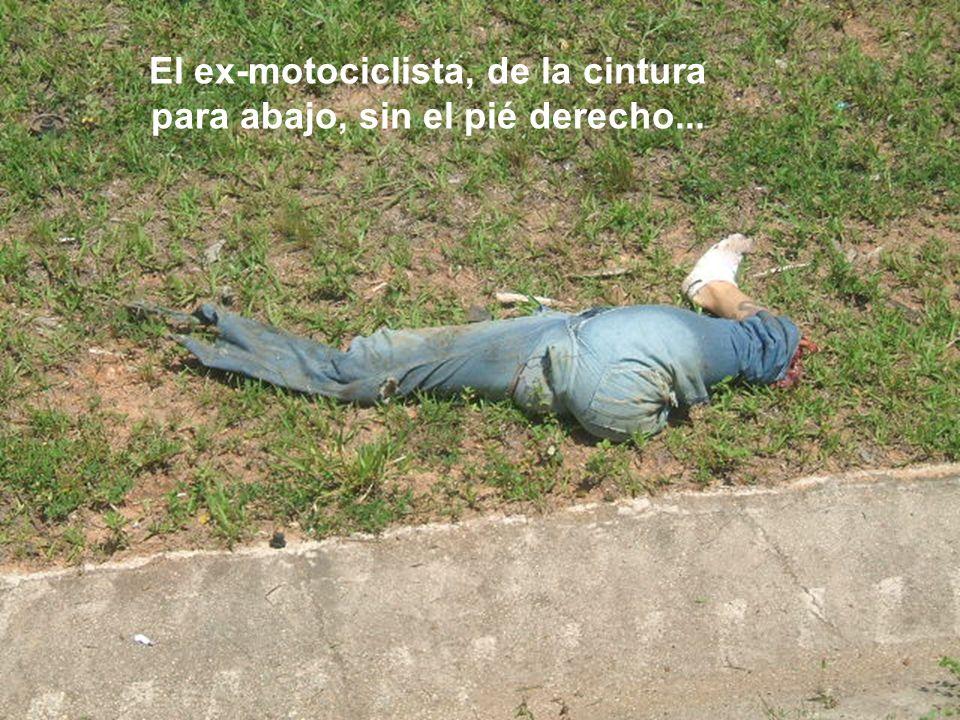 El ex-motociclista, de la cintura para abajo, sin el pié derecho...