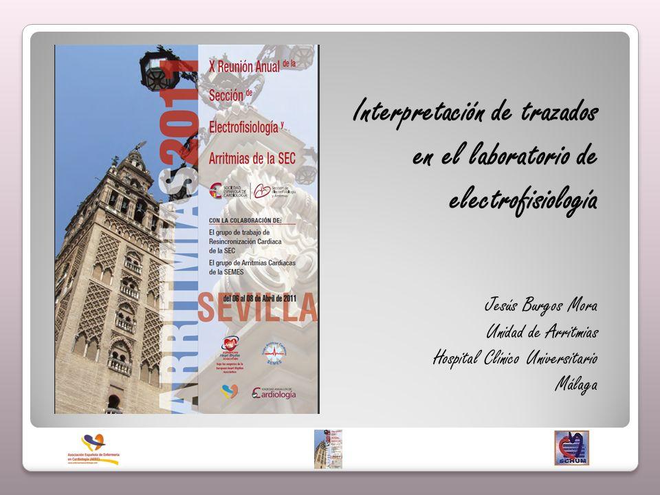 Interpretación de trazados en el laboratorio de electrofisiología Jesús Burgos Mora Unidad de Arritmias Hospital Clínico Universitario Málaga