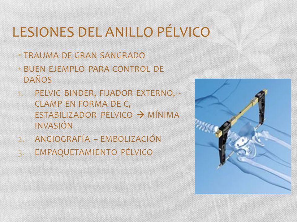 LESIONES DEL ANILLO PÉLVICO TRAUMA DE GRAN SANGRADO BUEN EJEMPLO PARA CONTROL DE DAÑOS 1.PELVIC BINDER, FIJADOR EXTERNO, - CLAMP EN FORMA DE C, ESTABI