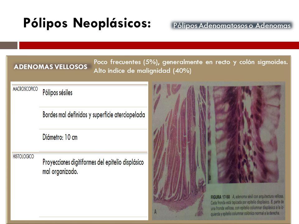Pólipos Neoplásicos: Pólipos Adenomatosos o Adenomas ADENOMAS VELLOSOS Poco frecuentes (5%), generalmente en recto y colón sigmoides. Alto índice de m