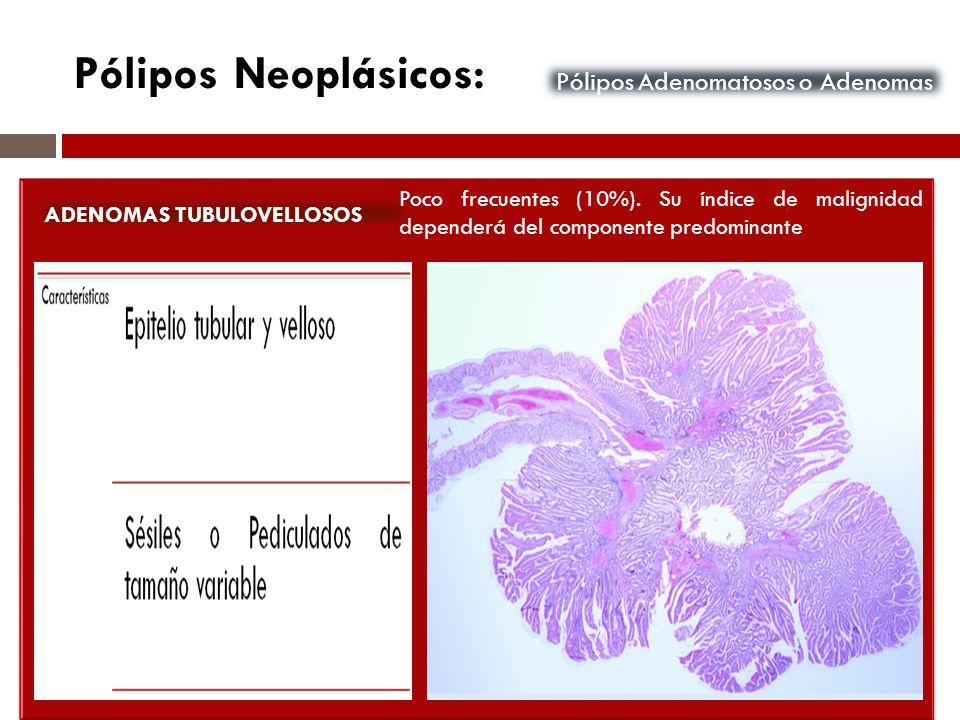 Pólipos Neoplásicos: Pólipos Adenomatosos o Adenomas ADENOMAS TUBULOVELLOSOS Poco frecuentes (10%). Su índice de malignidad dependerá del componente p