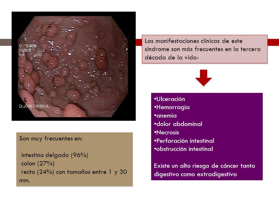Son muy frecuentes en: intestino delgado (96%) colon (27%) recto (24%) con tamaños entre 1 y 30 mm. Son muy frecuentes en: intestino delgado (96%) col