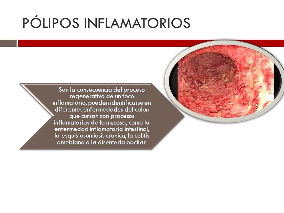 PÓLIPOS INFLAMATORIOS Son la consecuencia del proceso regenerativo de un foco inflamatorio, pueden identificarse en diferentes enfermedades del colon