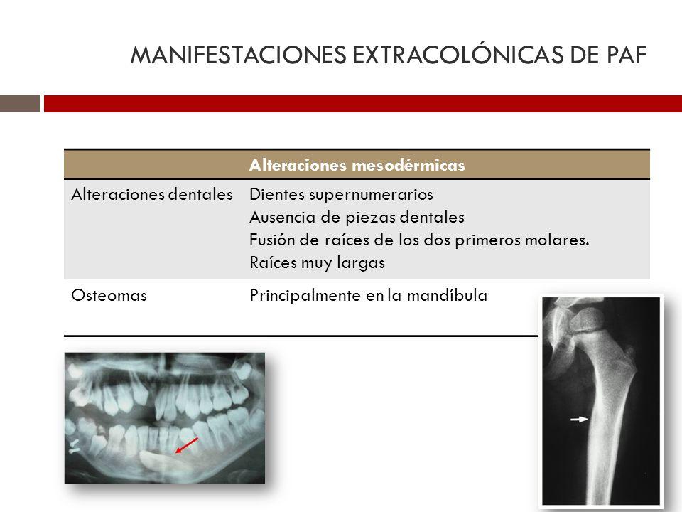 MANIFESTACIONES EXTRACOLÓNICAS DE PAF Alteraciones mesodérmicas Alteraciones dentalesDientes supernumerarios Ausencia de piezas dentales Fusión de raí