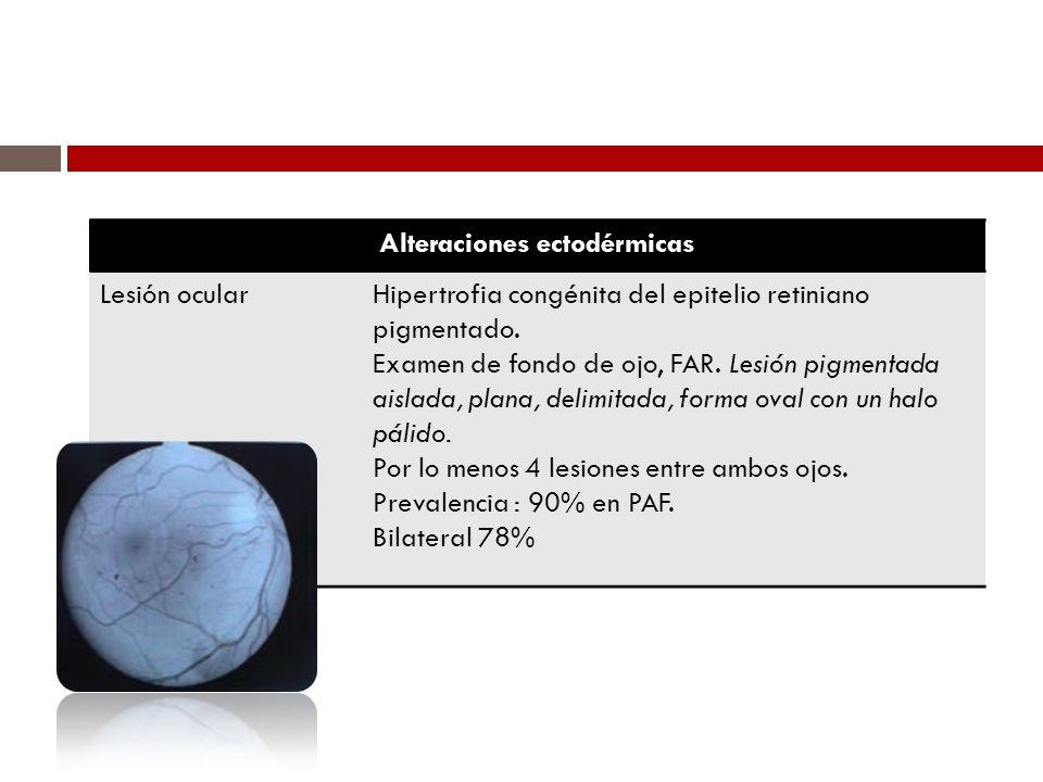 Alteraciones ectodérmicas Lesión ocularHipertrofia congénita del epitelio retiniano pigmentado. Examen de fondo de ojo, FAR. Lesión pigmentada aislada