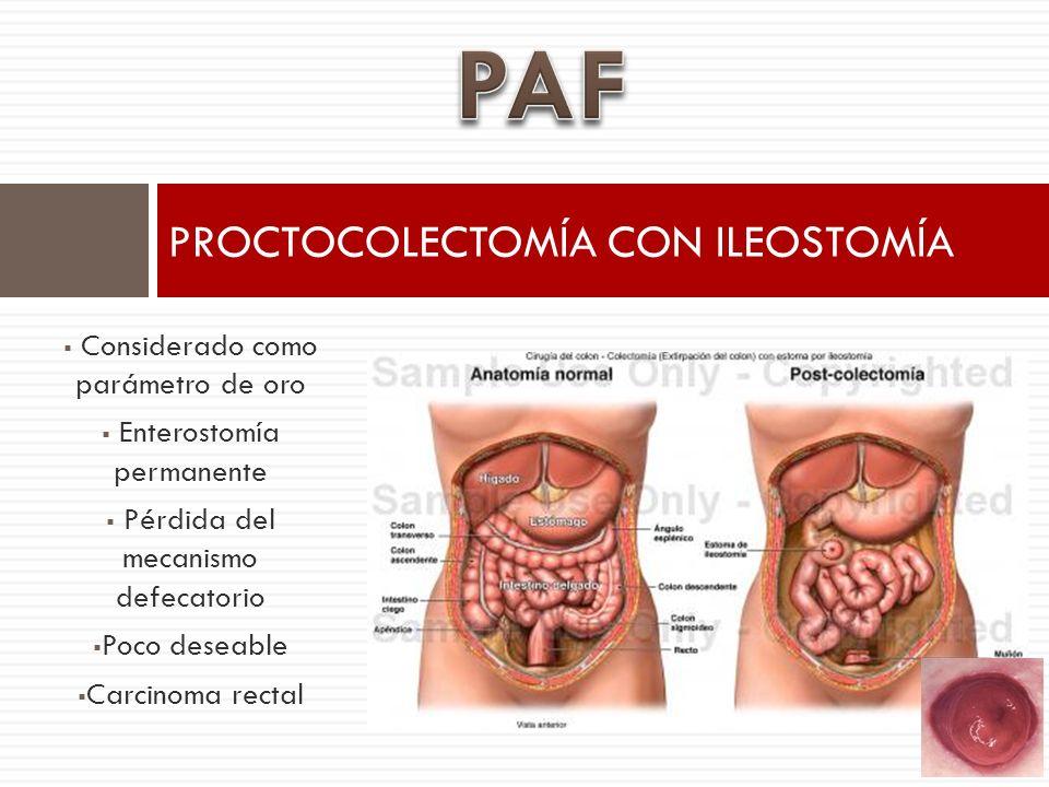Considerado como parámetro de oro Enterostomía permanente Pérdida del mecanismo defecatorio Poco deseable Carcinoma rectal PROCTOCOLECTOMÍA CON ILEOST