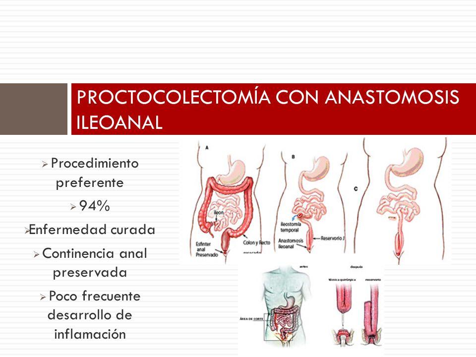 Procedimiento preferente 94% Enfermedad curada Continencia anal preservada Poco frecuente desarrollo de inflamación PROCTOCOLECTOMÍA CON ANASTOMOSIS I