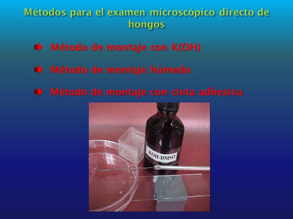 Método de montaje con K(OH) Método de montaje con K(OH) Método de montaje húmedo Método de montaje húmedo Método de montaje con cinta adhesiva Método de montaje con cinta adhesiva
