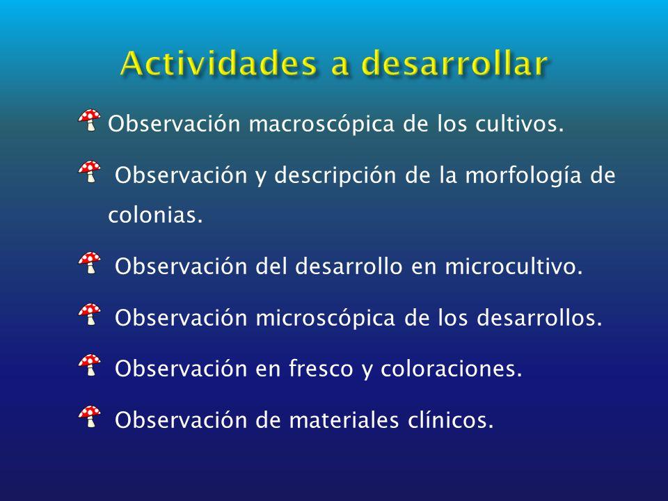 Observación macroscópica de los cultivos. Observación y descripción de la morfología de colonias. Observación del desarrollo en microcultivo. Observac