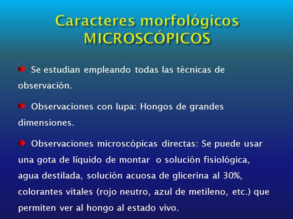 Se estudian empleando todas las técnicas de observación. Observaciones con lupa: Hongos de grandes dimensiones. Observaciones microscópicas directas: