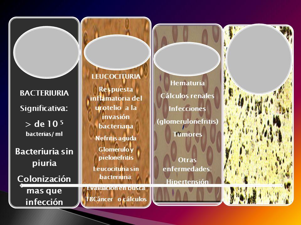 Bacteriuria BACTERIURIA Significativ a: > de 10 5 bacterias/ ml Bacteriuria sin piuria Colonización mas que infección LEUCOCITURIA Respuesta inflamato