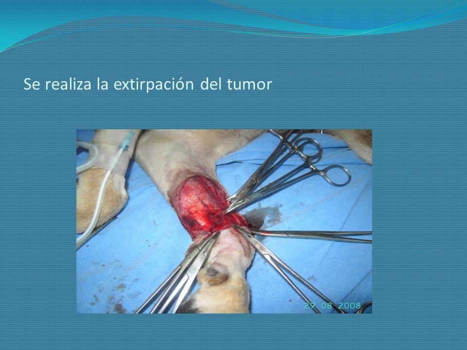 Se realiza la extirpación del tumor